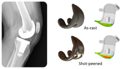 Residual stress measurement results in medical prosthetic knee replacement implant.
