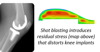 Stress map on knee replacement prosthesis